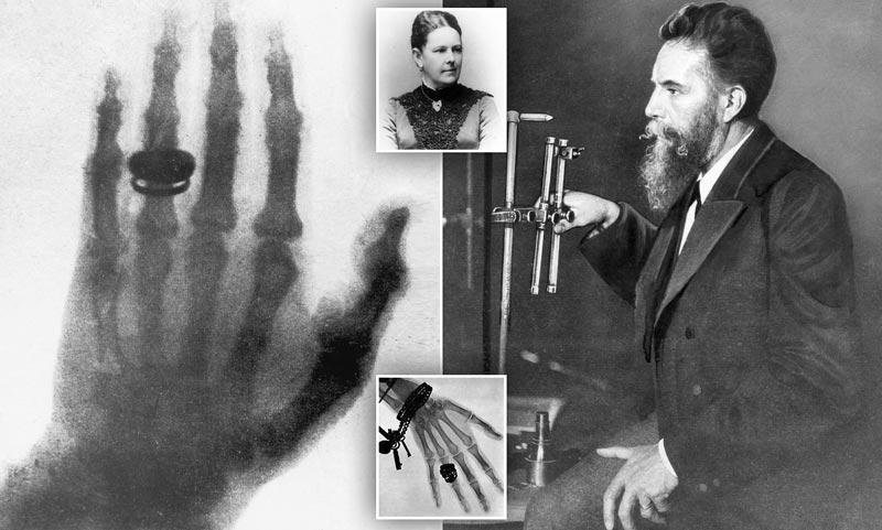 La primera radiografía de la historia