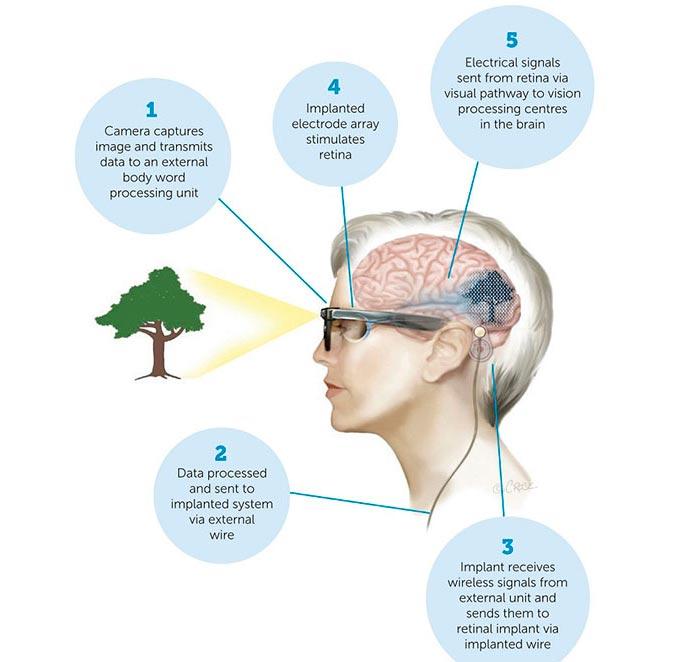 Descripción del funcionamiento del ojo biónico