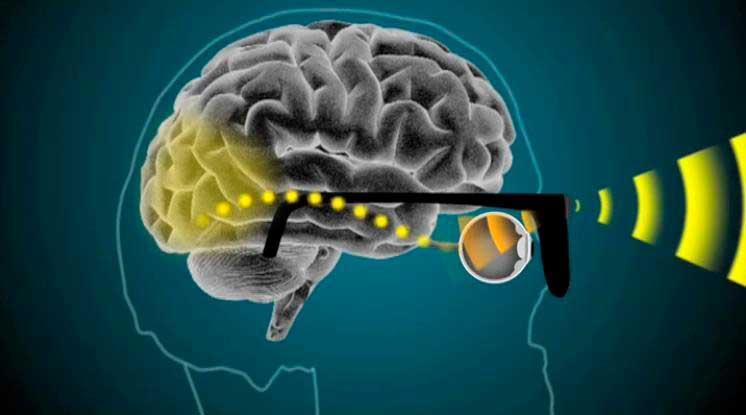 El sistema propuesto por Bionic Vision Technologies