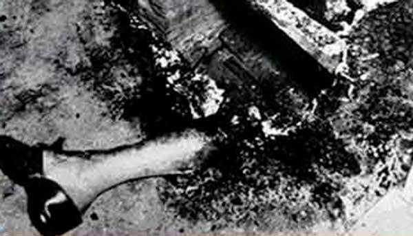 Imágenes de los restos de un supuesto caso de combustión espontánea humana