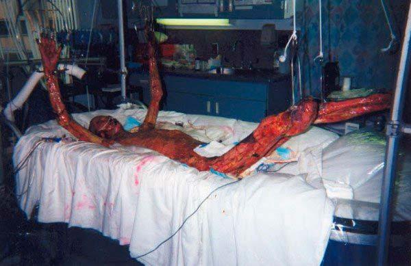 El terrible estado de Hisashi Ouchi debido a la exposición a la radiación